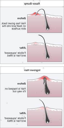 indgroet hår behandling